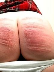 Naked and exposed ass cheeks with deep severe cane stripes