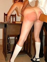 Naked girl welted on her huge round ass - battered and bruised buttocks